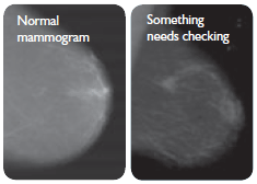 In a normal mammogram, the breast tissue appears an even grey. In an abnormal mammogram, there is an area of the breast that appears lighter.