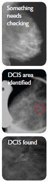 A mottled-appearing mammogram indicates something needs checking. An area of microcalcifications that may be DCIS is indentified, and the DCIS found.