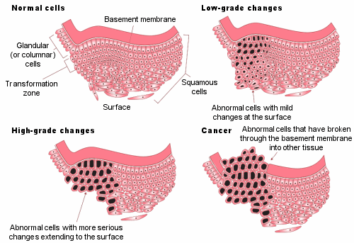 Figure 6: Stages of abnormal cell changes. The cervical cells all sit atop a basement membrane. A layer close to the basement membrane is called the transformation zone, which is where cell changes start. In low-grade changes, cells in the transformation zone have serious changes, and mild changes can be found in abnormal cells at the surface. With high-grade changes, the abnormal cells with serious changes extend right to the surface. When this develops into cancer, it means the abnormal cells have broken through the basement membrane into other tissue.
