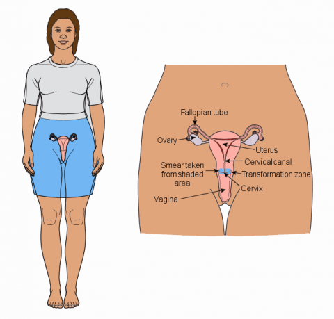 The cervix is a part of the female reproductive system. It is located at the bottom of the uterus, or womb, and at the top of the vagina. This is where cervical smears are taken from.