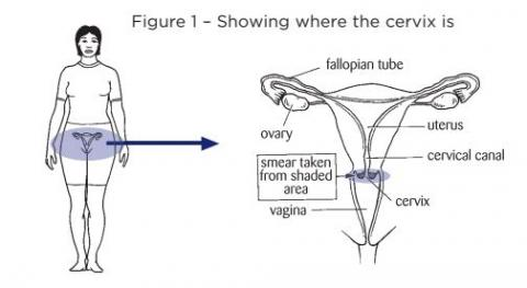 Cervical Screening: What Women Need to Know – English version | HealthEd