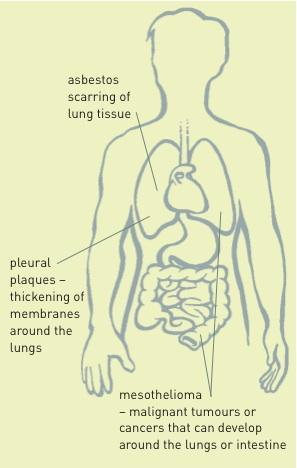 Diagram showing the damage asbestos can cause in the body: scarring of the lung tis-sue; pleural plaques – thickening of membranes around the lung; mesothelioma – ma-lignant tumours or cancers that can develop around the lungs or intestine.